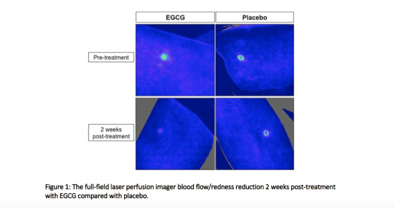 Figure 1: The full-field laser perfusion imager blood flow/redness reduction 2 weeks post-treatment with EGCG compared with placebo.
