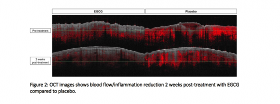 Figure 2: OCT images shows blood flow/inflammation reduction 2 weeks post-treatment with EGCG compared to placebo.